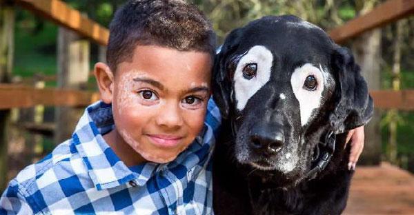 เด็กน้อยเคยเกลียดโรคประจำตัว แต่เมื่อเจอสุนัขที่เป็นโรคเดียวกัน ก็กลับมายิ้มแย้มได้อีกครั้ง