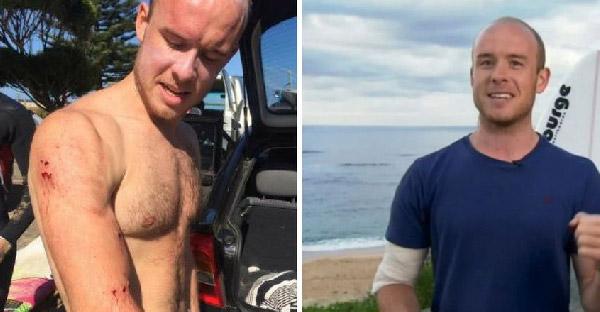 ชายหนุ่มรอดชีวิตจากการถูกฉลามจู่โจม ด้วยเคล็ดลับที่เค้าเรียนรู้จาก Youtube