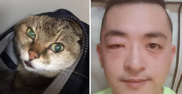 หนุ่มเพิ่งรู้ว่าแพ้แมวหลังจากช่วยลูกแมวหลง แต่เขาก็เลี้ยงมานานกว่า 21 ปี